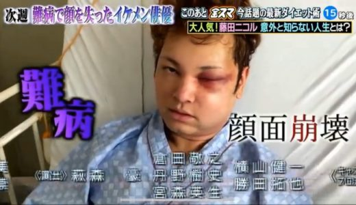 顔を失ったイケメン俳優「間瀬 翔太」の病気とは?現在の画像【難病:脳動静脈奇形】